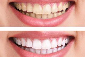 Përbërësit natyral për zbardhjen e dhëmbëve