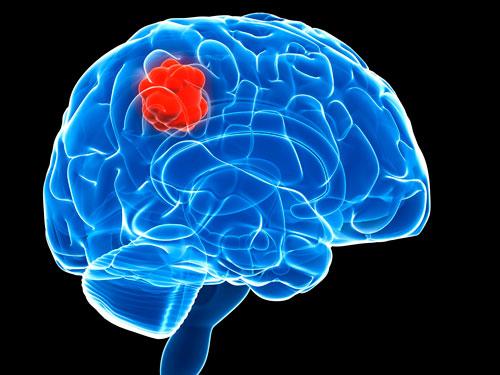 Këngëtari i njohur diagnostikohet me tumor në tru