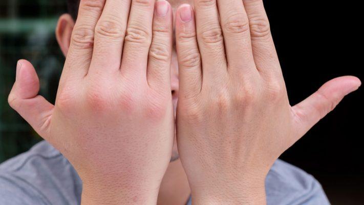 Mos i injoroni kurrë, këto janë 3 arsyet pse ju ënjten gishtat e duarve