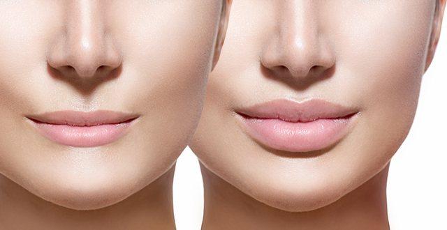 Gjërat që duhet të dini patjetër para se të bëni ndërhyrje tek buzët